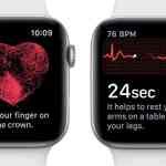 Apple、watchOS 5.3を正式に公開!Walkie-Talkieのバグ修正、カナダとシンガポールでの心電図機能サポート