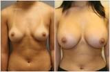 breast-23