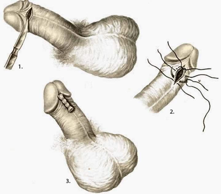 varrat a pénisz alján