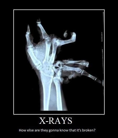 X-rays - how else are you gonna know that its broken?