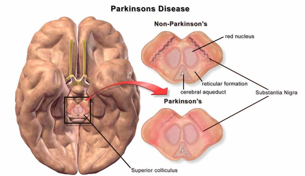 Parkinsons-Disease-stem-cells