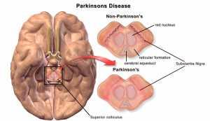 Parkinson's Disease stem cells