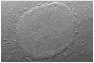 Knoepfler lab H1 human embryonic stem cell culture, ESC