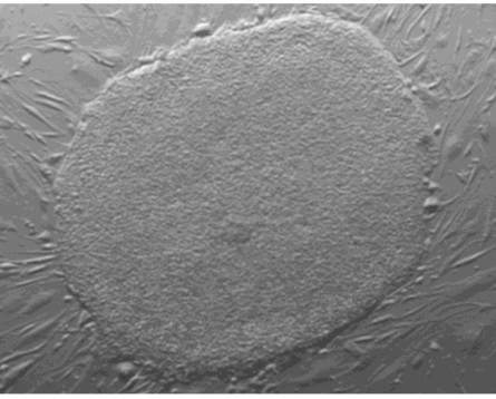 Knoepfler lab H1 human embryonic stem cell culture