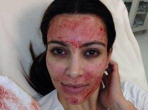 kim kardashian weird vampire facial