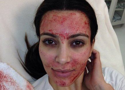 Kim Kardashian getting a vampire facelift