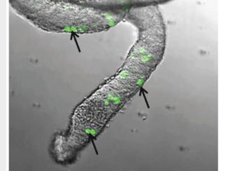 GFP+ germ cells
