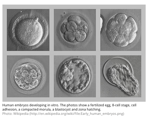 Early-human-embryos