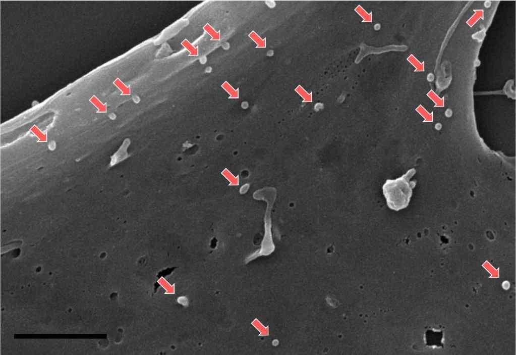 Mesenchymal-stem-cell-exosomes