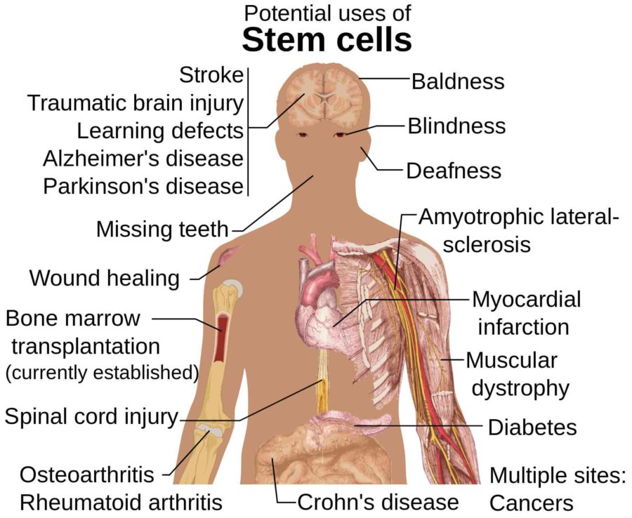 5451713f3 If you ve had a stem cell treatment