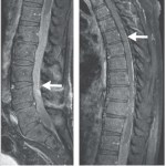 Patient gets cancer growing on spine from dubious stem cell treatment