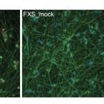 Journal club: Jaenisch lab paper on epigenetic CRISPR-Cas9 rescue of Fragile X in a dish