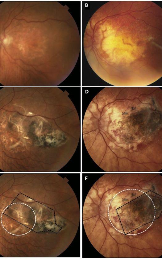 stem cells for vision loss