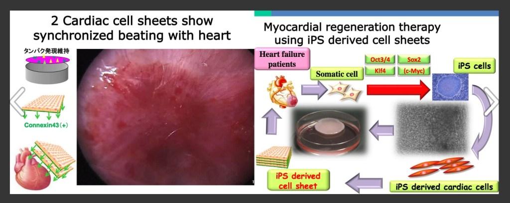Yoshiki-Sawa-IPS-cells-stem-cells-heart-diseease