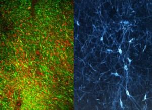 monkey-graft-hPSC-derived-dopamine-neurons-in-Parkinsonian-monkey-brain