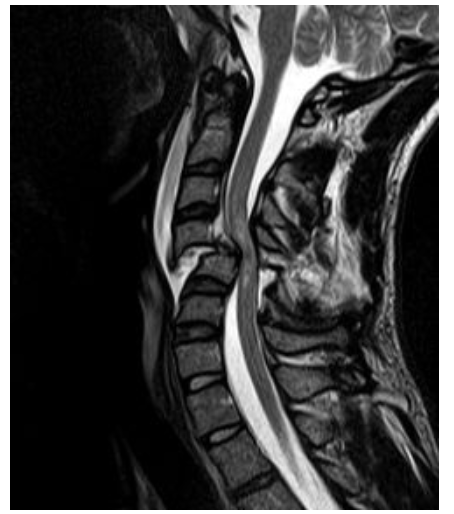 spinal-cord-injury-MRI