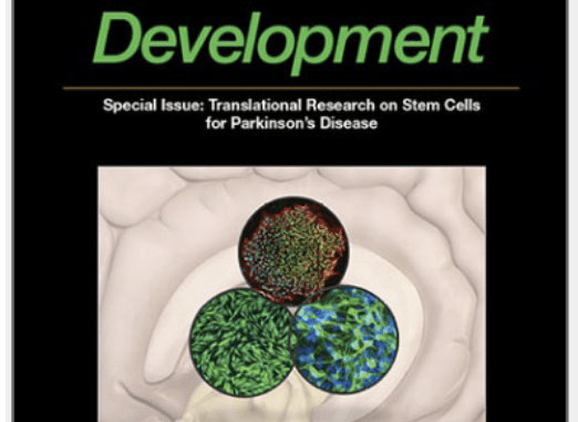 stem cells and development parkinson's disease