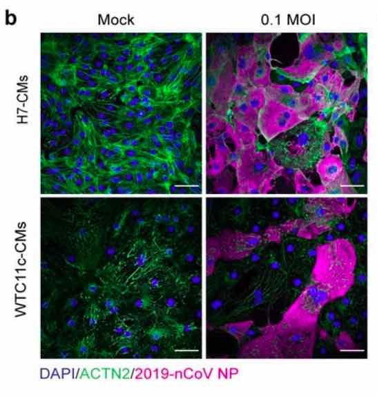 2019nCoV-NP-cardio-myocytes