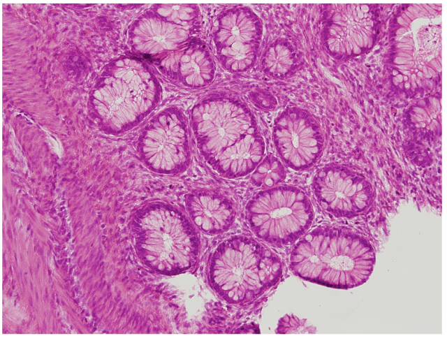 What is a teratoma? human stem cell teratoma knoepfler lab