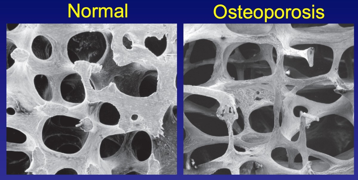 osteoporosis, stem cells for osteoporosis