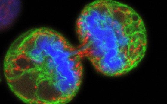 melanoma cancer stem cells