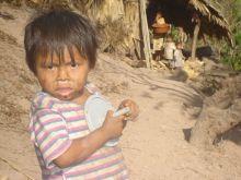 Undernourished child in Camotán, in eastern Guatemala.   / Credit:Danilo Valladares/IPS