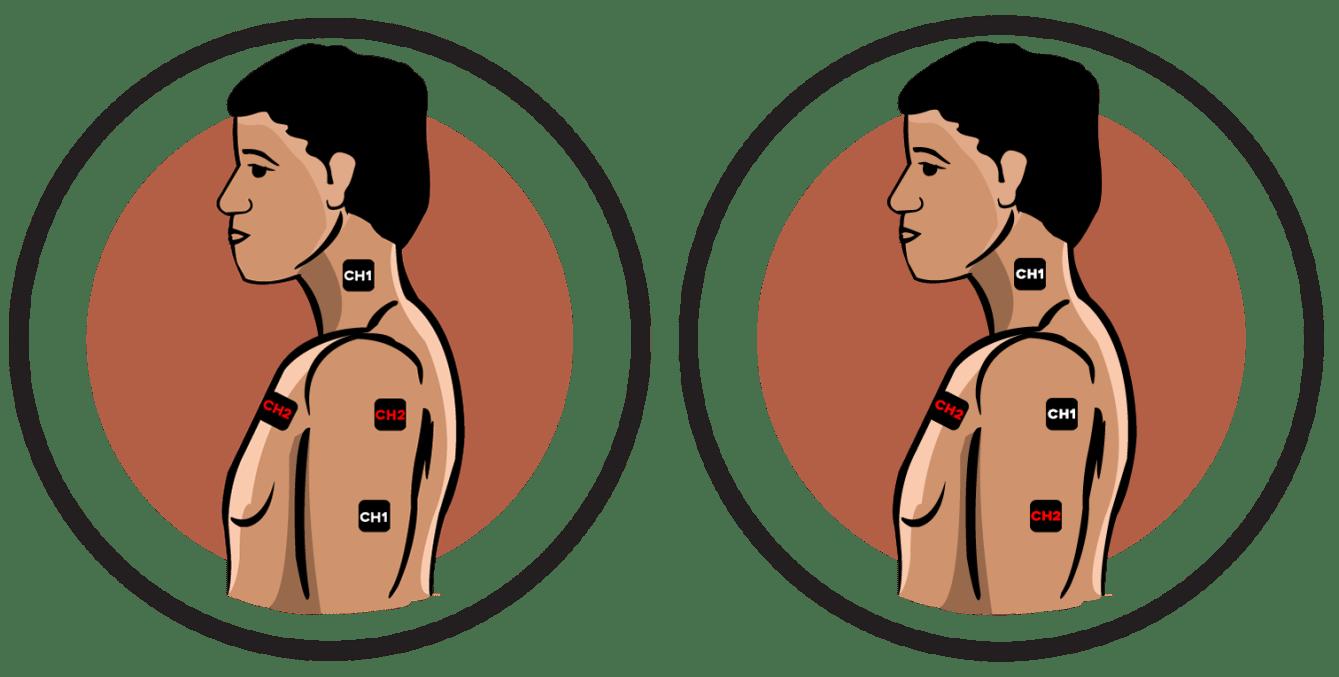 Bicipital Tendonitis Electrode Pad Placement