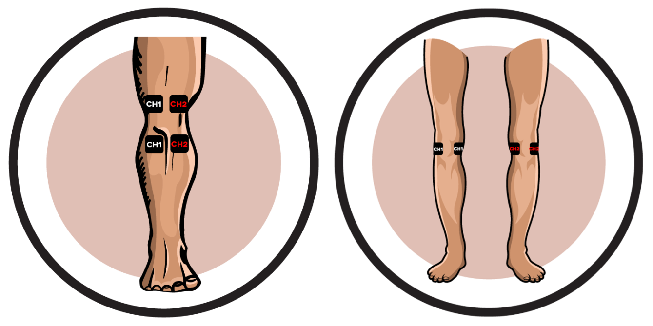Knee Electrode Pad Placement