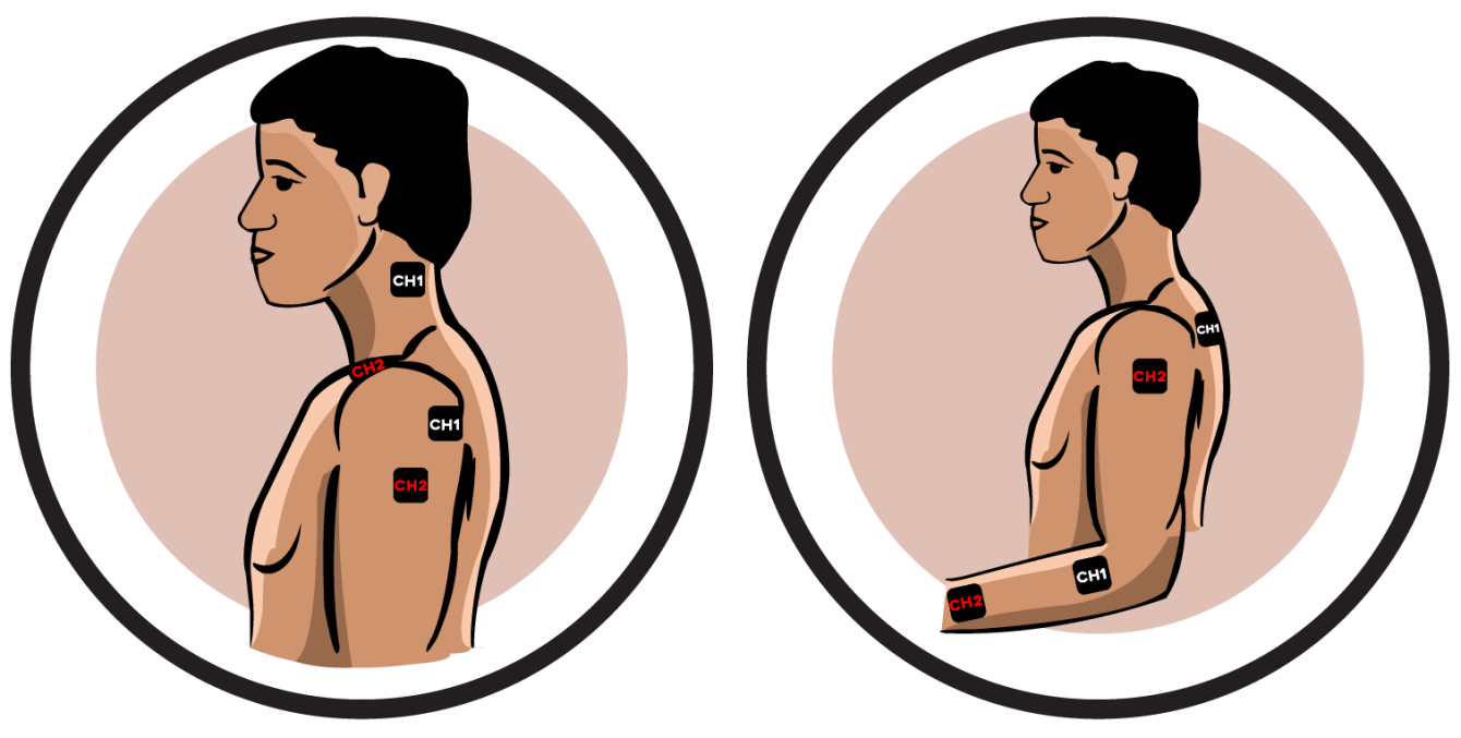 Upper Body Reflex Sympathetic Dystrophy Electrode Pad Placement