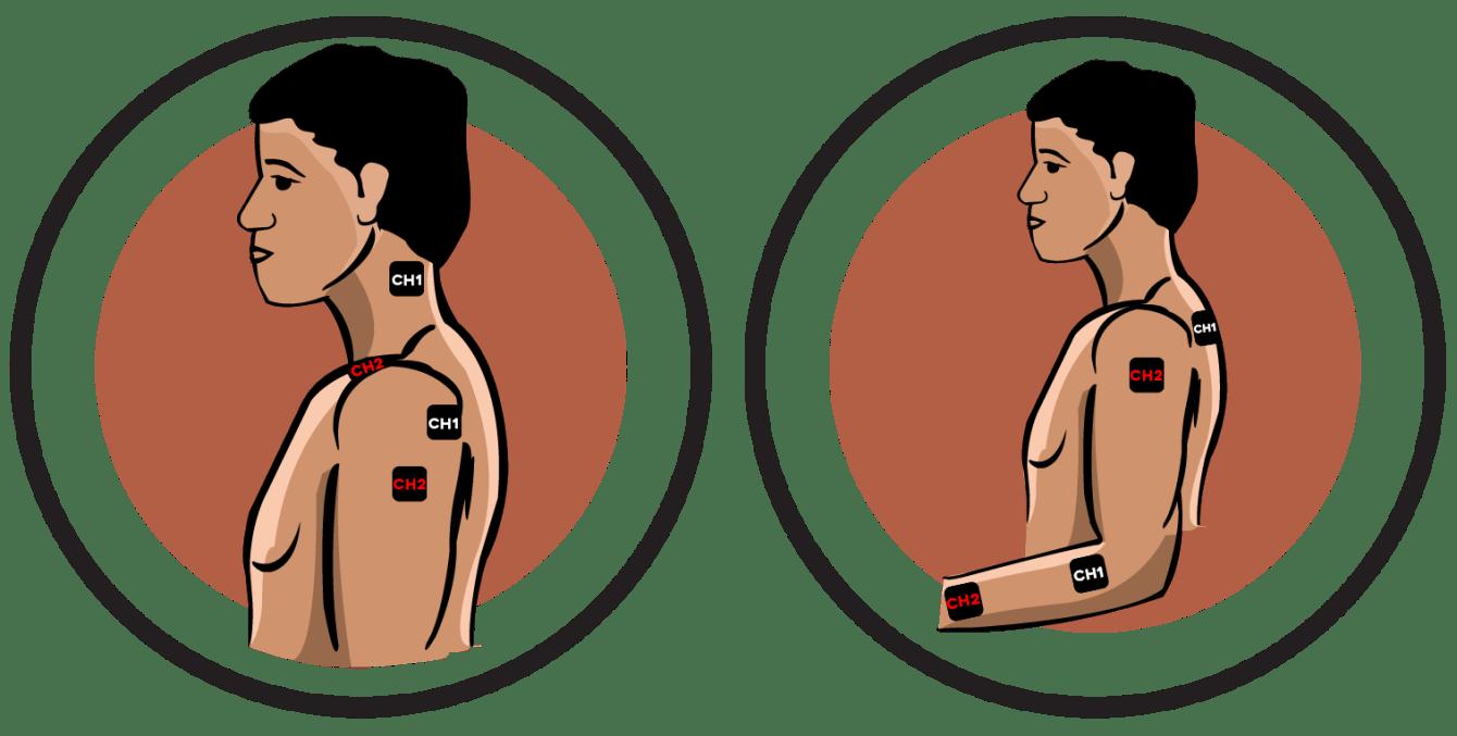 Upper Body Reflex Sympathetic Dystrophy Electrode Pad Placement