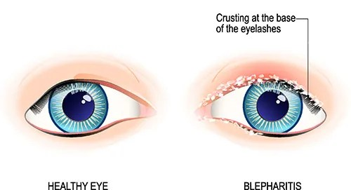Blepharitis Diagram