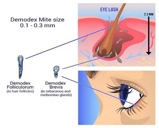 Demodex Mites Diagram