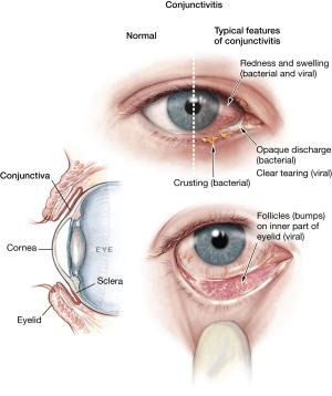 Swollen Eyelids  💡💻 Iris  Software for Eye protection