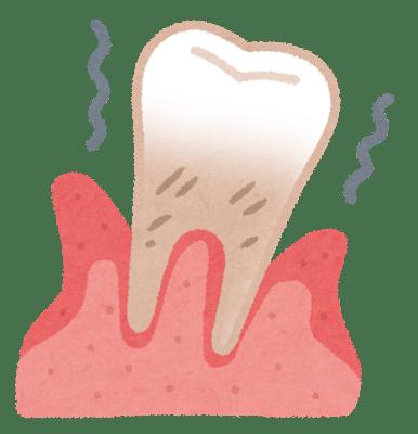 歯周病予防には歯間ブラシ!1年間でこんなに変化が!