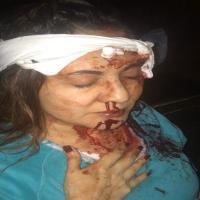 Ana Cecy, hija de Abril Pérez y Juan Carlos García, revela fotos de su mamá luego de ser atacada por su padre