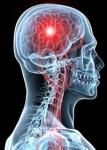 脳梗塞の異変を見落とすな! 4時間30分が生死を分ける