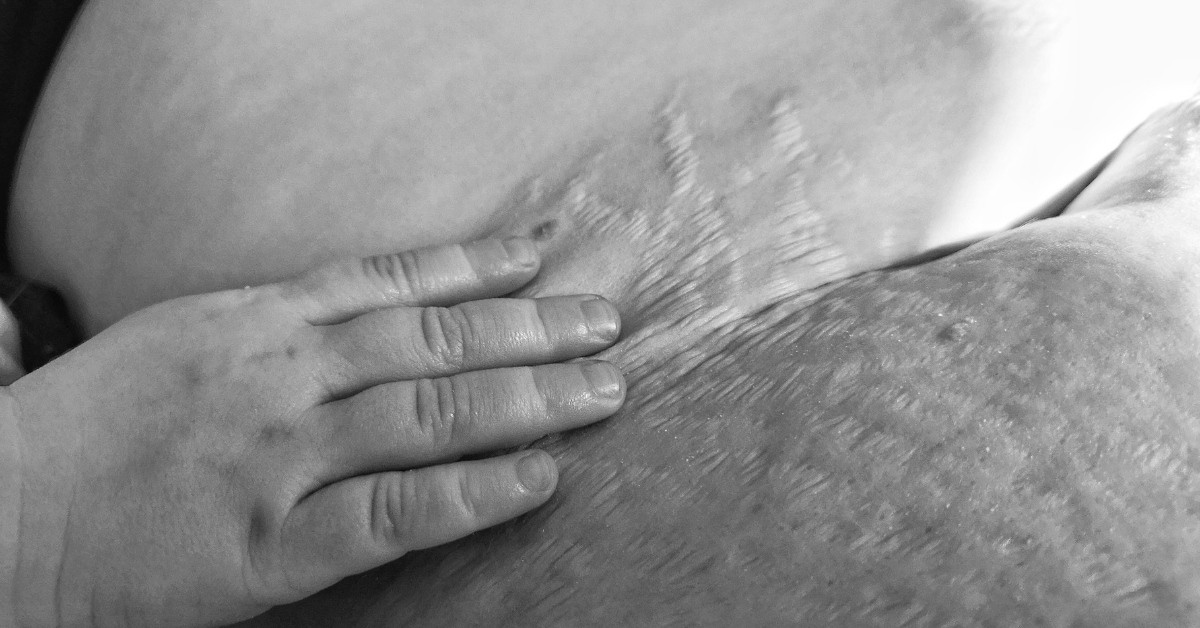 Stretch Marks: I Love My Wife's Symbol of Becoming a Mother