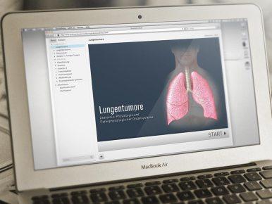 Tumoren der Lunge Mit diesem Lernmodul lassen sich die Grundlagen zur Tumortherapie einfach und unterhaltend erarbeiten. Die vielen medizinischen Illustrationen geben einen guten Einblick in das Wissensgebiet.