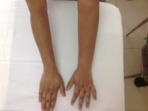 Conditions Treated with Compression Therapy 2