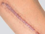Scars & Scar Therapy 4