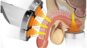 Shockwave Therapy for ED Diagram