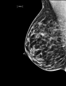 Is it just me or do breasts look like a galaxy on a mammogram? source link