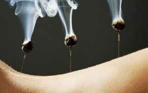 acupuncture treatments at island spirit spa in kealakekua