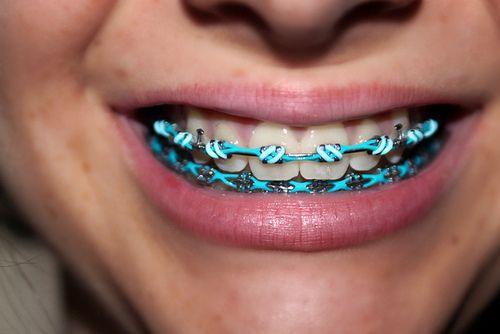 hammaste valgendamine