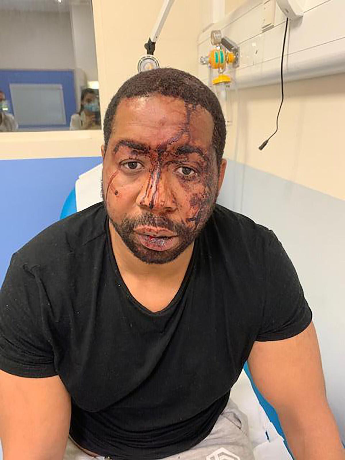 Francia: La brutal golpiza e insultos racistas que recibió un hombre negro en manos de la policía