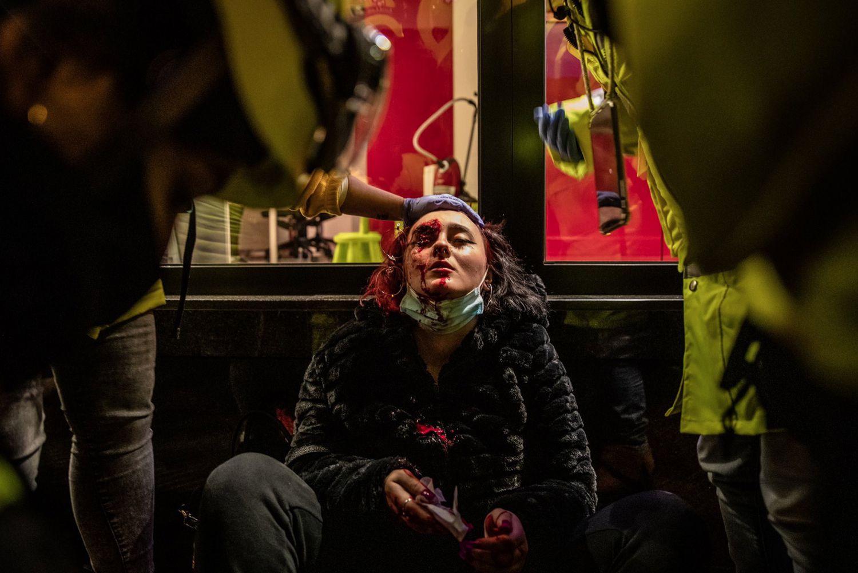 España: Manifestante pierde el ojo en medio de las protestas en contra del encarcelamiento de Pablo Hasél