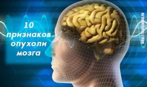 Первые признаки опухоли головного мозга — вы должны знать об этом!