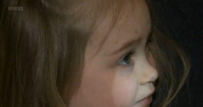 Childhood-Rare-Condition-696x367 | Мать опубликовала фото дочери в Facebook... Это спасло малышке жизнь!