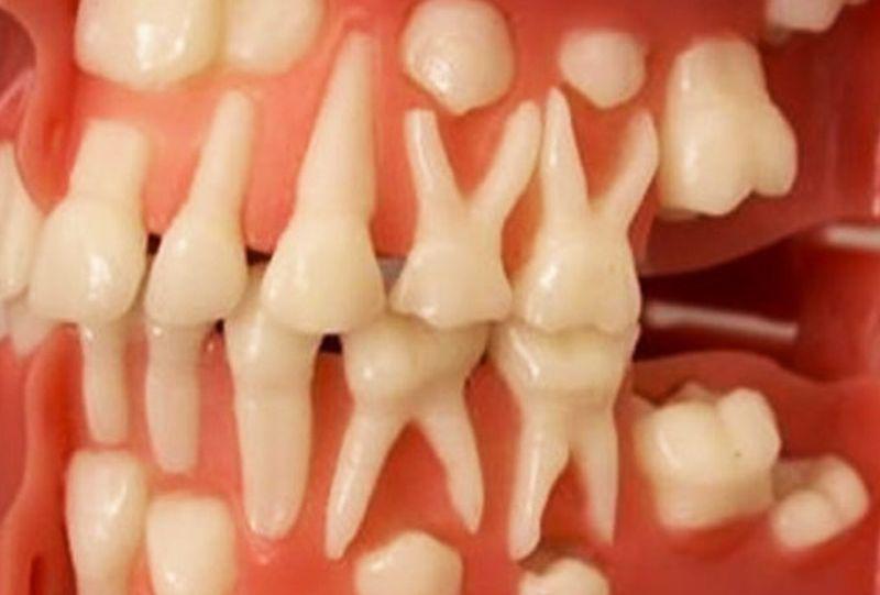 zuby_result   Зубы могут вырасти в любом возрасте — 9 недель и вы с новыми зубами!