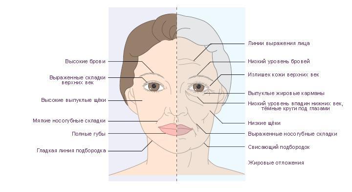 image3-49 | Типы старения лица: как ты будешь выглядеть?